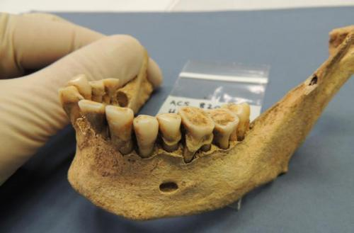 Ancient teeth bacteria record disease evolution