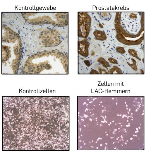 Researchers suppress cell division in prostate tumour tissue through enzyme inhibition