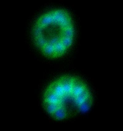 Study finds vulnerability in malaria parasite