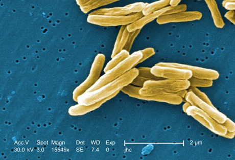 TB bacteria's trash-eating inspires search for new drugs