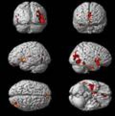 Voxel-based magnetic resonance morphometry in Parkinson's disease patients