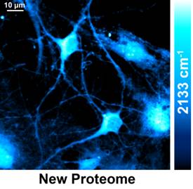 Watching the production of new proteins in live cells