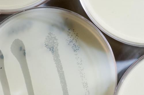 Discovery reveals how bacteria distinguish harmful vs. helpful viruses