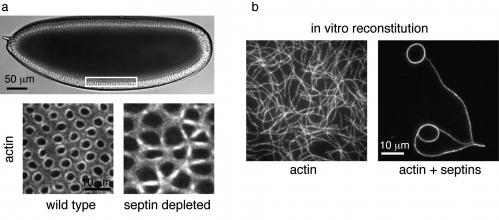 Actin ring assembly by septin proteins