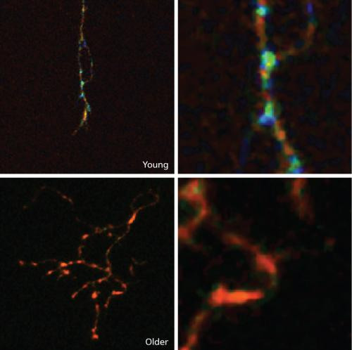 Enzymes linked to cell death play key role in structural dynamics of neuronal axons