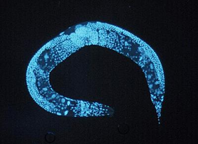 Global regulator of mRNA editing found