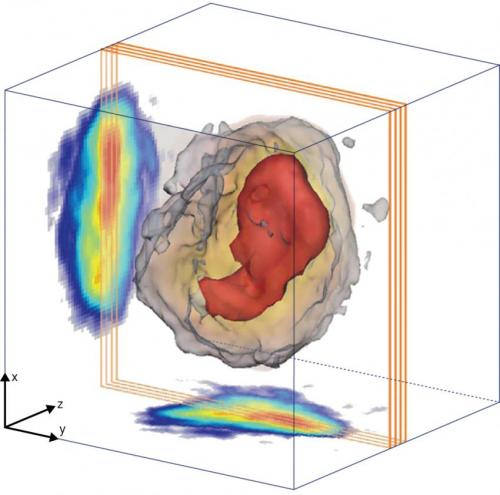 X-ray imaging reveals a complex core
