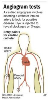 Study suggests too many invasive heart tests given (AP)