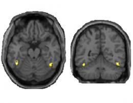 Brain's visual circuits do error correction on the fly