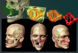 Engineering could give reconstructive surgery a facelift