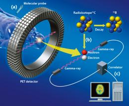 Figure 1. Molecular imaging by PET.