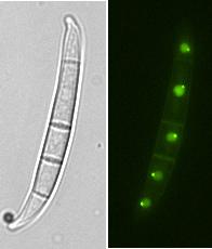 Fusarium spore