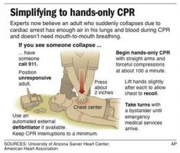 Hands-only CPR, pushy dispatchers are lifesavers (AP)