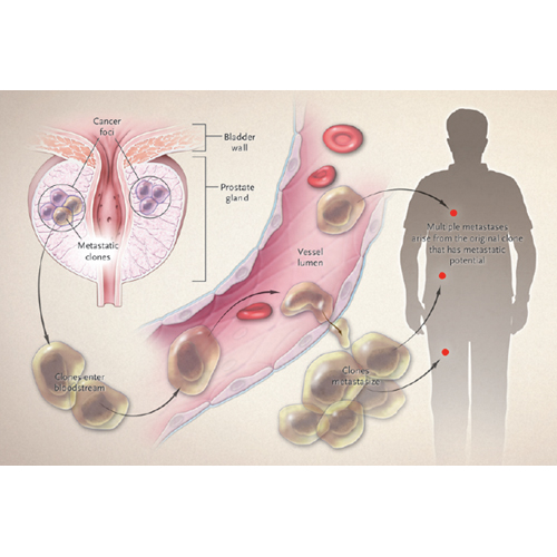 Focal Therapy And Prostate Cancer