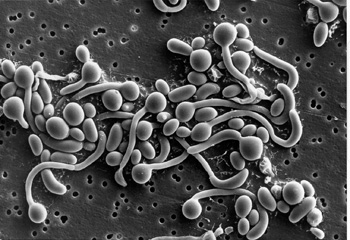 Research paper candida albicans