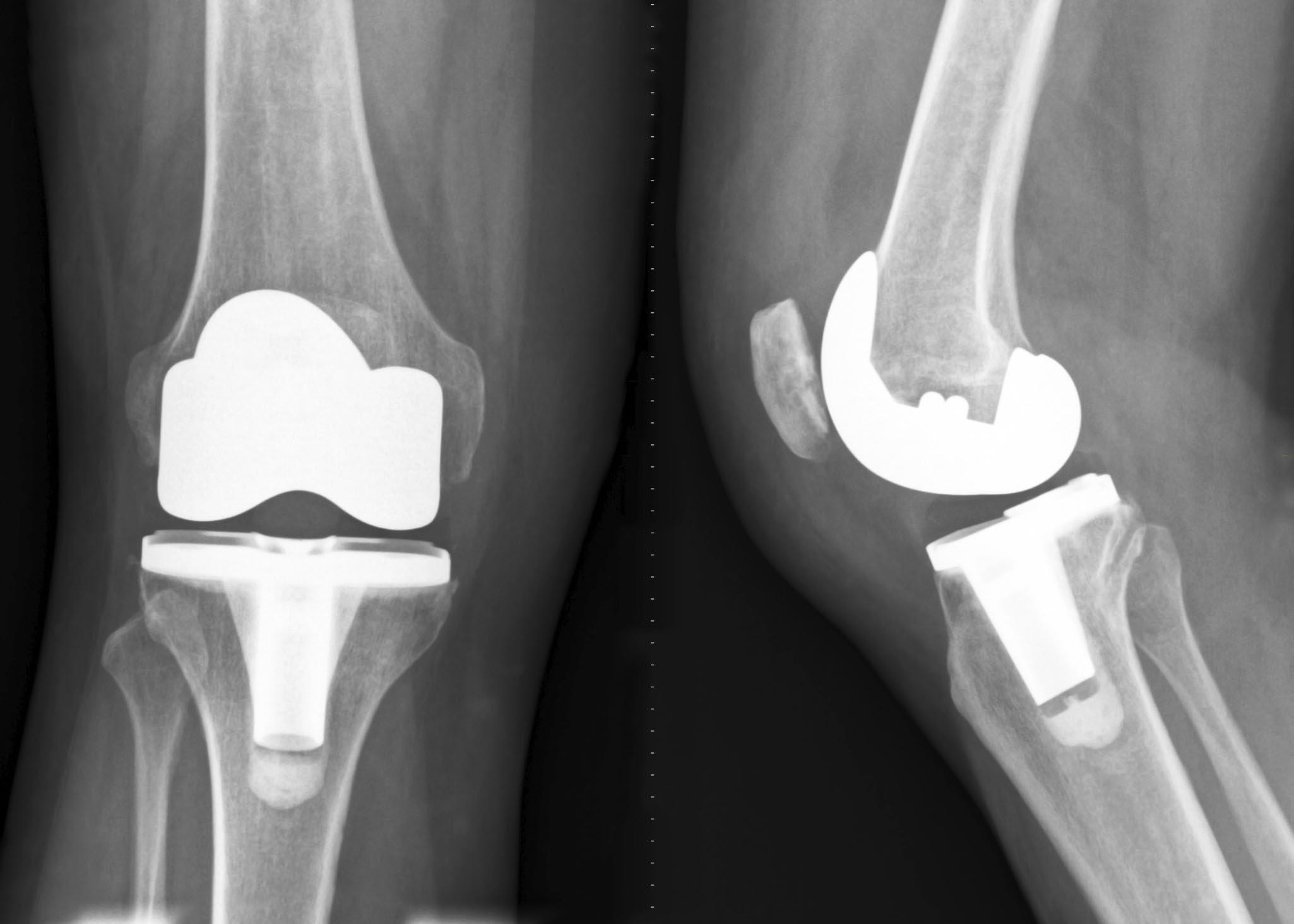 knee prothesis replacements Complications of total knee arthroplasty  wear in total hip and knee replacements j bone joint surg am 1999 jan 81 (1):115-36.