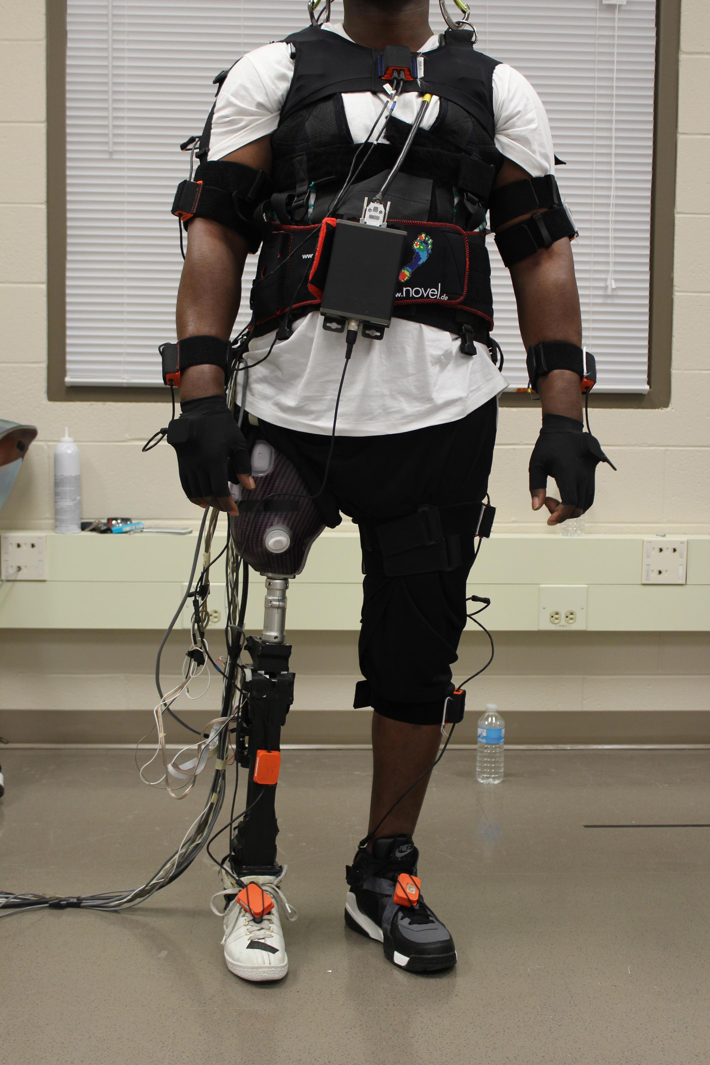 Researchers Study Impact Of Power Prosthetic Failures On