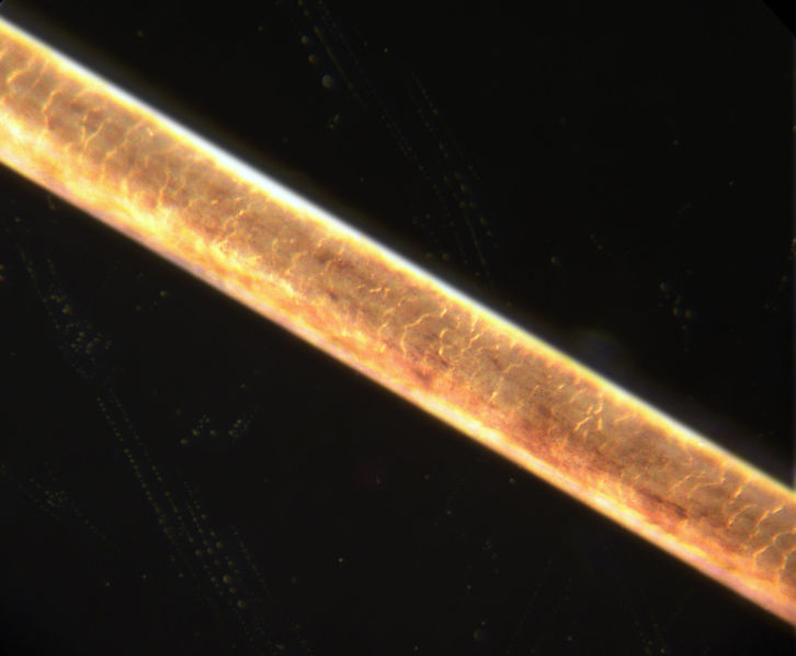 Root Hairs Microscope Human Hair Root Under