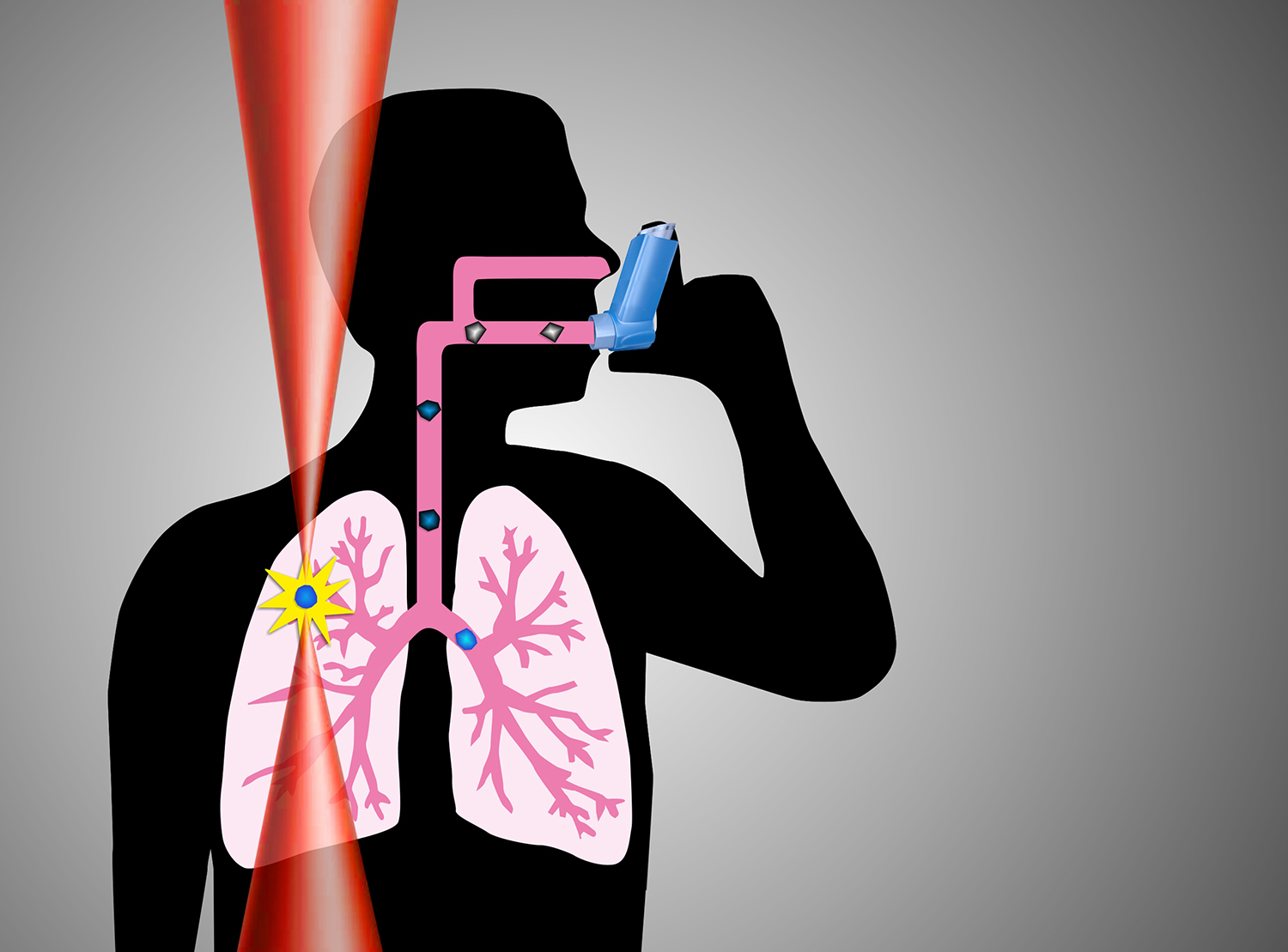 drug study for asthma Pitrakinra is a drug that can interfere with the actions of  allergic asthma is  caused by the exposure to a.