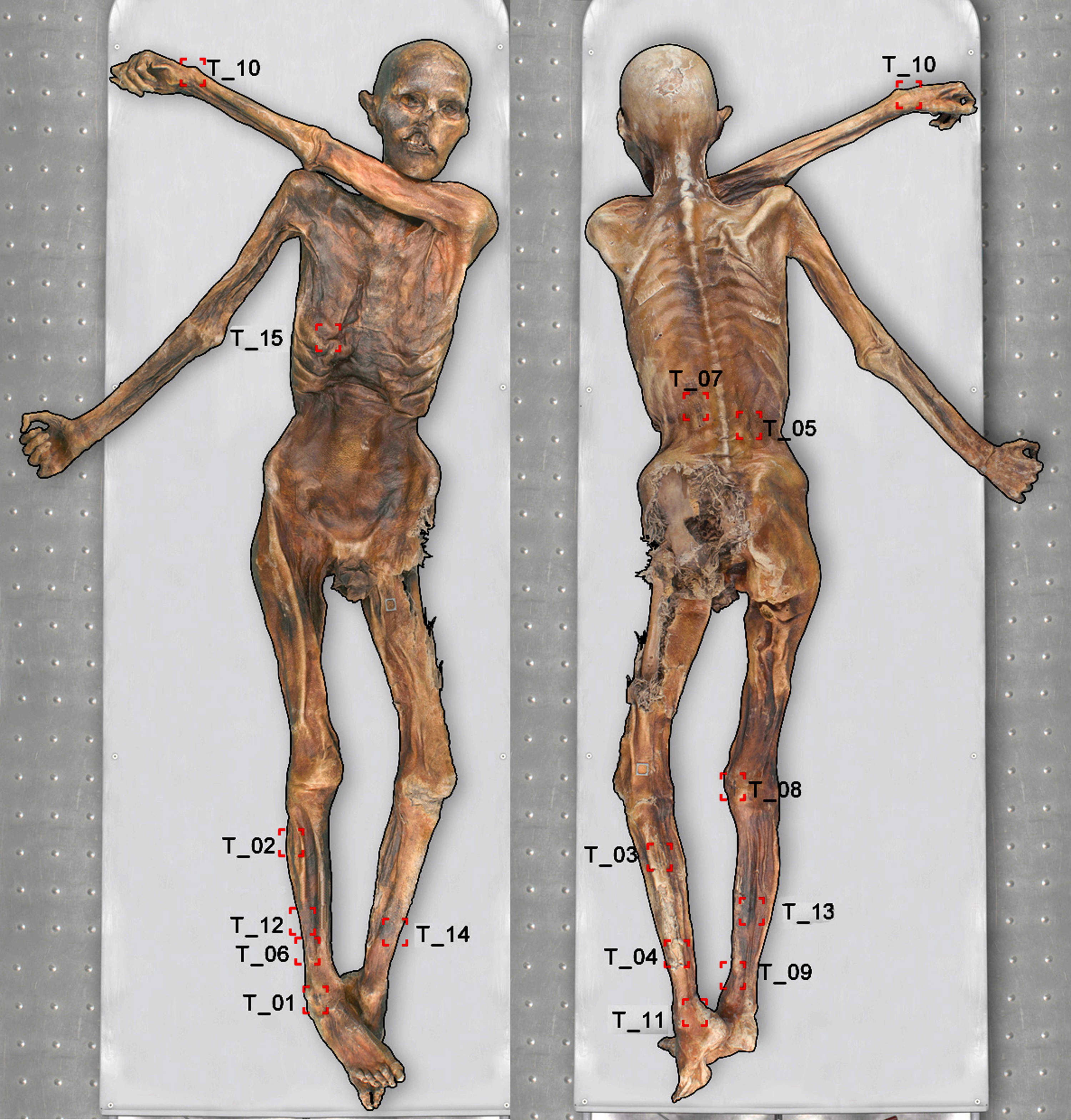 New tattoos discovered on Oetzi mummy