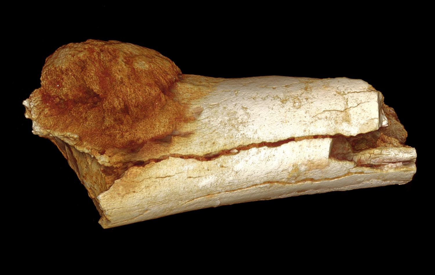 Earliest case of cancer found in 1.7-million-year-old fossil