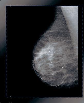 Why I wont get a Mammogram  Butter Nutrition