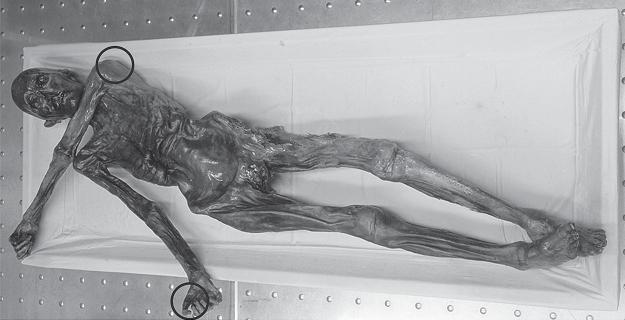 Nanostructure of 5,000-year-old mummy skin reveals insight into mummification process