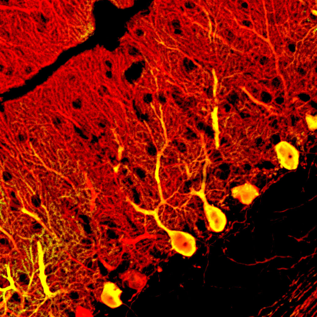 Replacing faulty neurons - Pure kindje ...