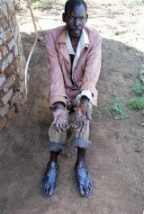 Horror disease hits Uganda (AP)