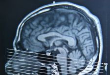 New probe promises to reveal brain's mysteries