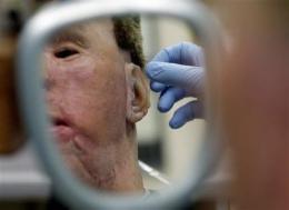 New program rebuilding faces of soldiers, veterans (AP)