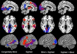 Parts of brain can switch functions: study