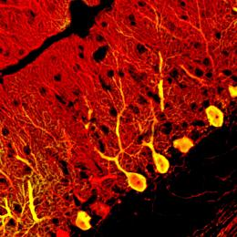 Replacing faulty neurons