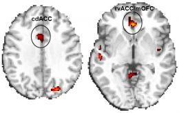 Ritalin Improves Brain Function, Task Performance in Cocaine Abusers