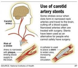 Stroke study finds neck stents safe, effective