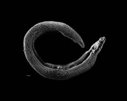 Study of planarian hormones may aid in understanding parasitic flatworms
