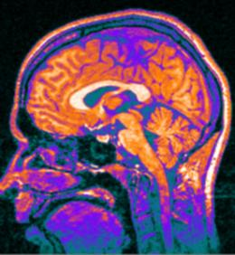 Tracking Huntingdon's with new brain imaging tests
