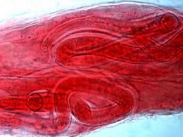 Trichinosis parasite gets DNA decoded